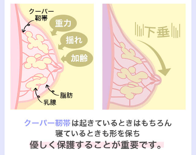 クーパー靭帯 ナイトブラ